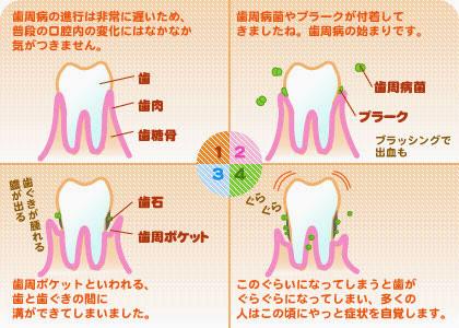 歯周病の代表的な症例